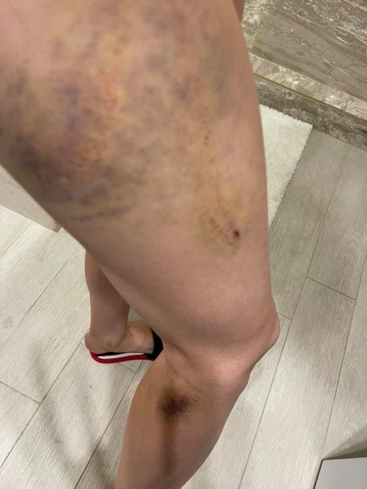 Гематомы на ноге