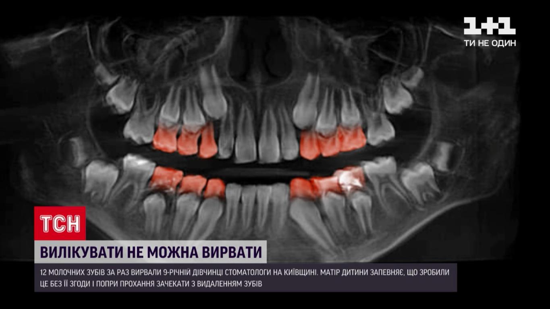 Удаленные зубы