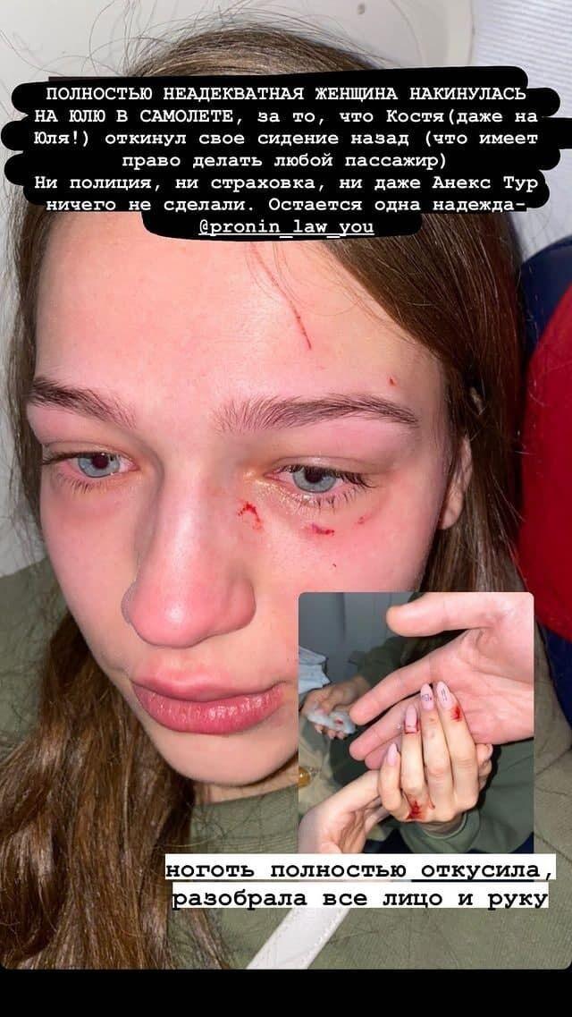 Юлии поцарапали лицо