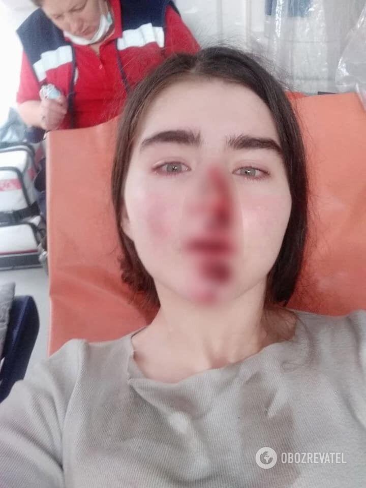 20-летняя Алиса Полищук получила травмы катаясь на электросамокате.
