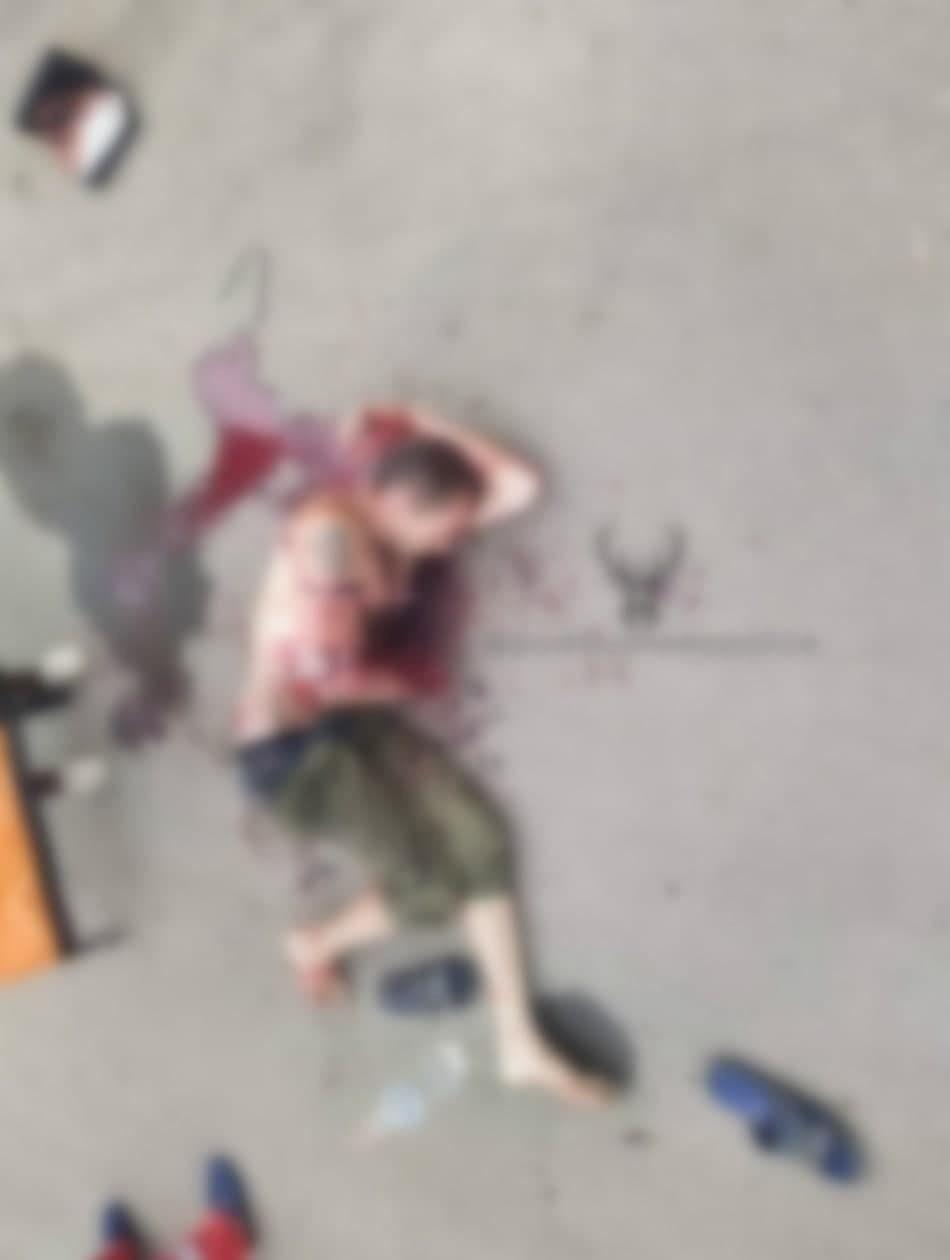 Пострадавший от взрыва гранаты.