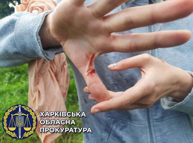 Пострадавшая получила порез руки