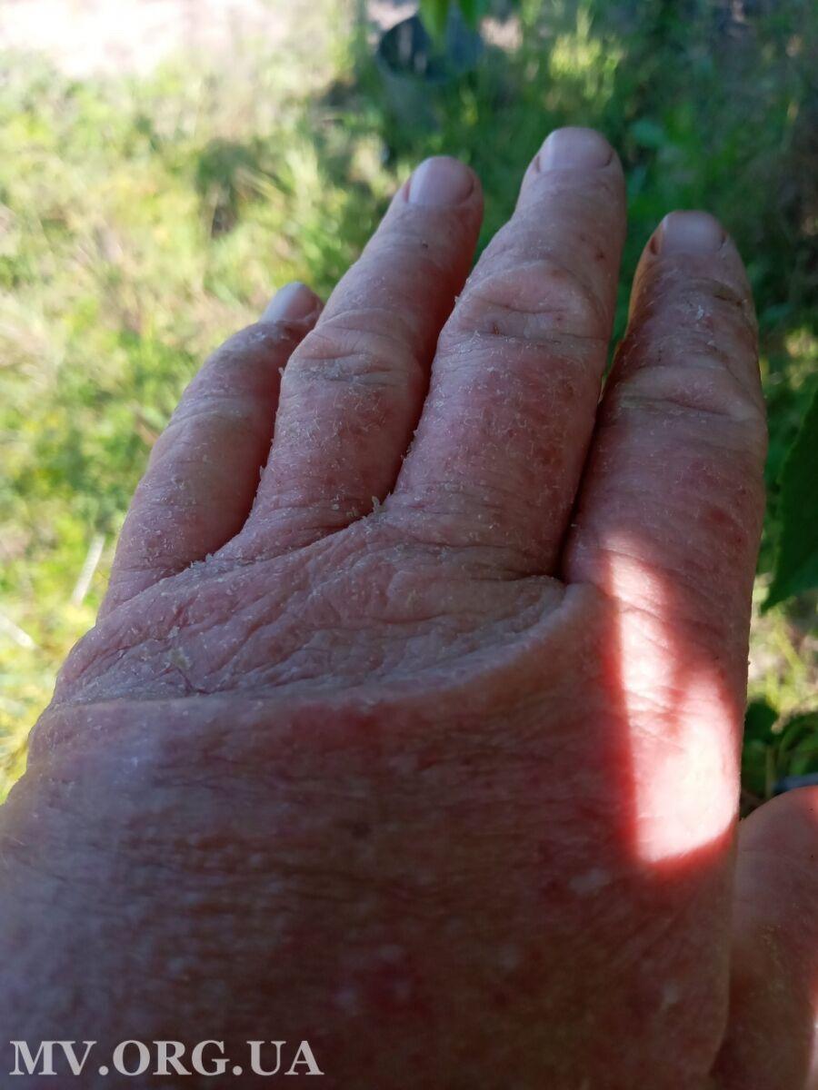 Руки опухли, шкіра почервоніла і почала лущитися