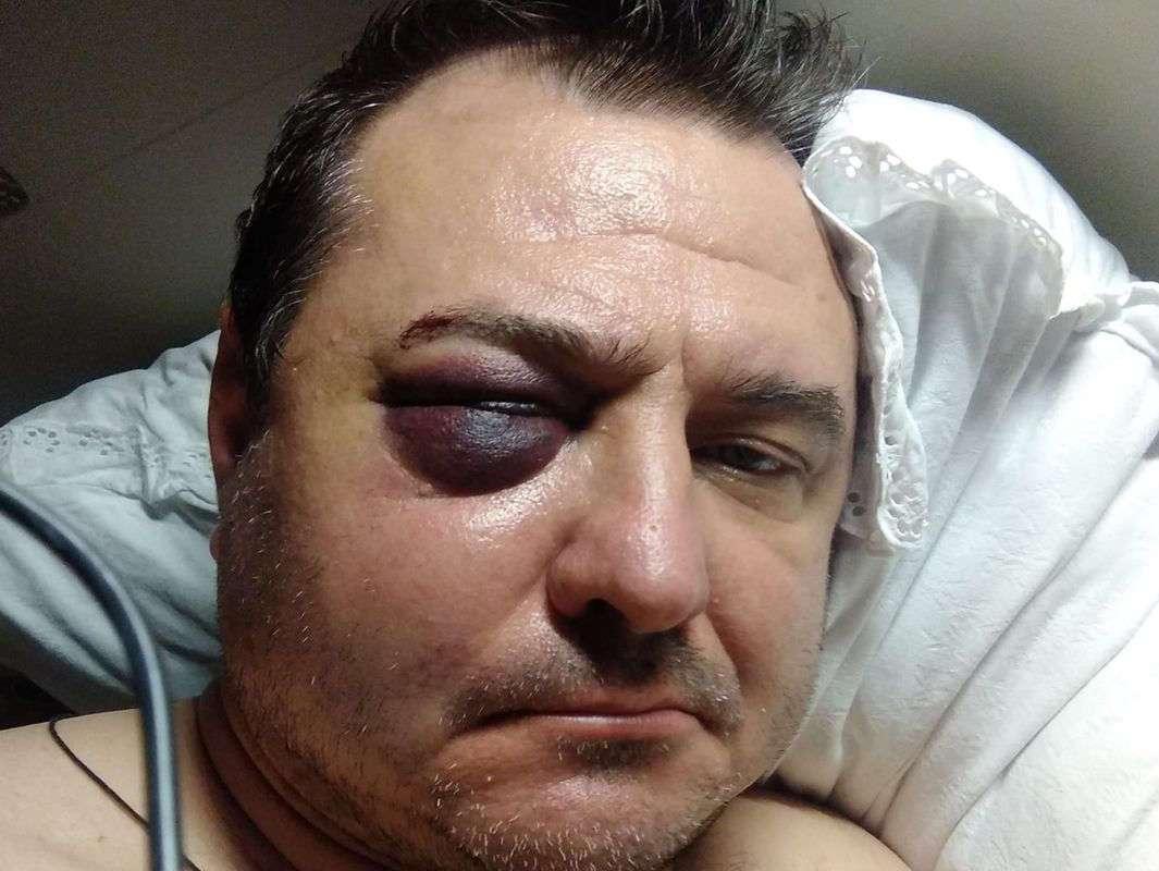 Руслан Казанцев показал фото из больницы.