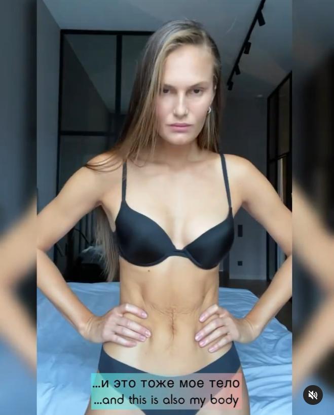 """Костромічова показала свою """"неідеальну"""" шкіру"""