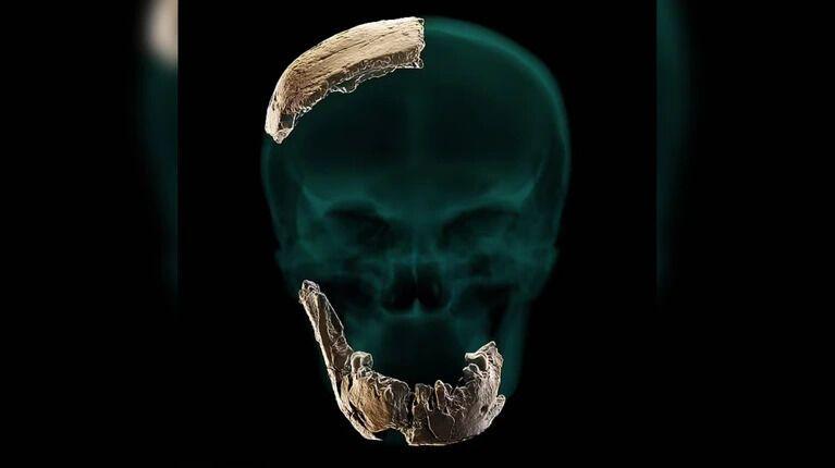 Реконструкція черепа