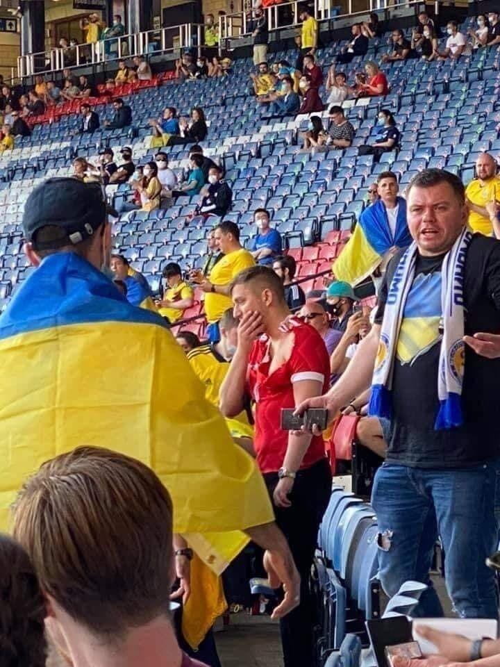 Російський уболівальник тримається за щелепу