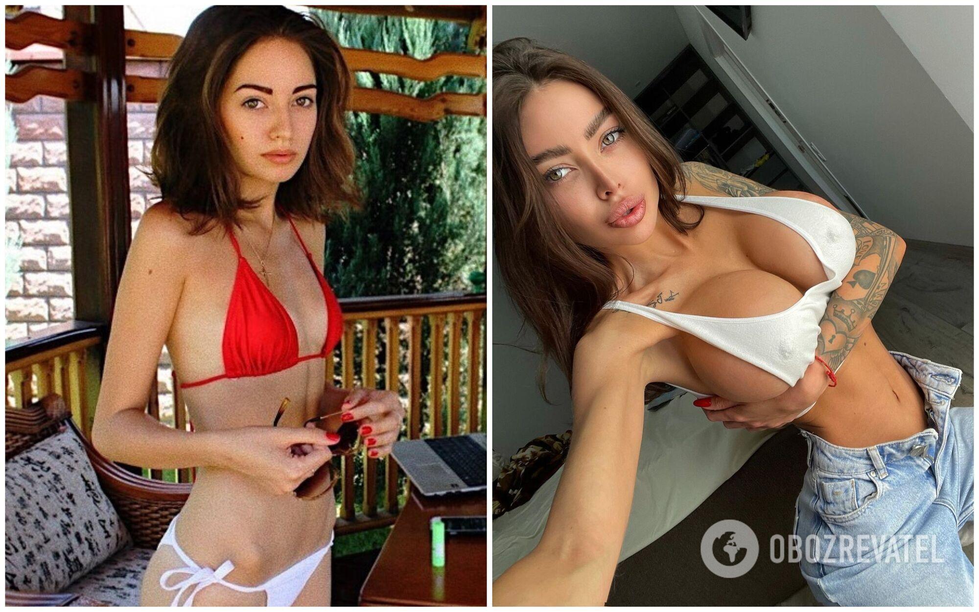 Алену Омович называют украинской Ким Кардашьян за ее многочисленные пластические операции