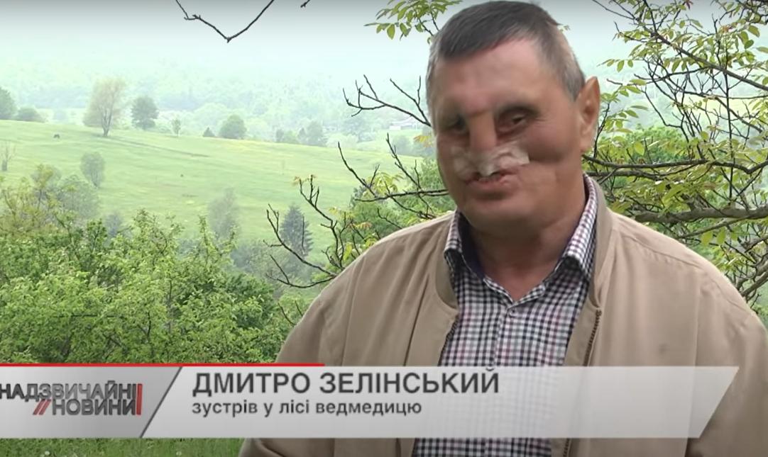 Дмитро Зелінський після нападу в лісі.