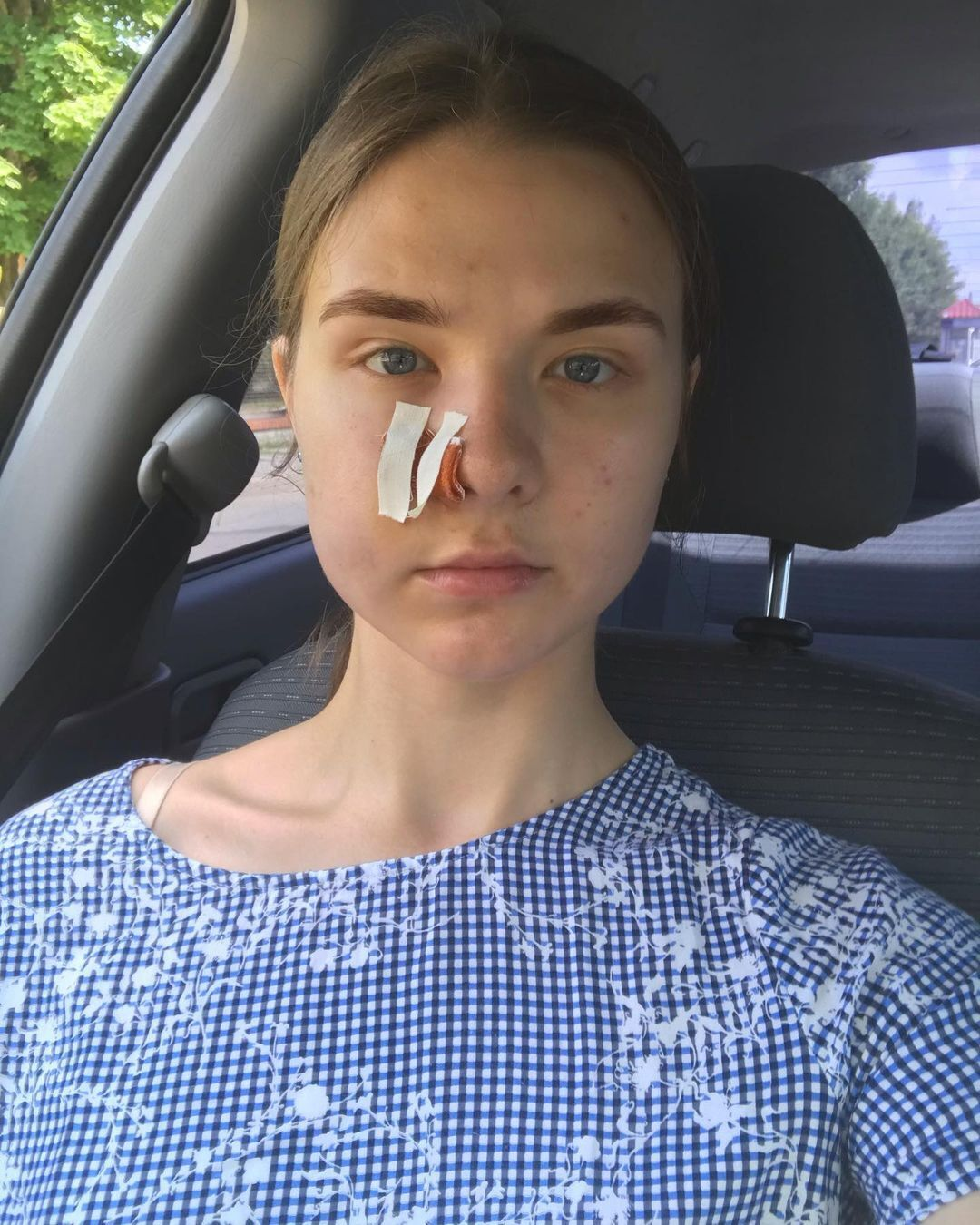 """В обличчя дівчини вистрілили з """"травмата"""""""