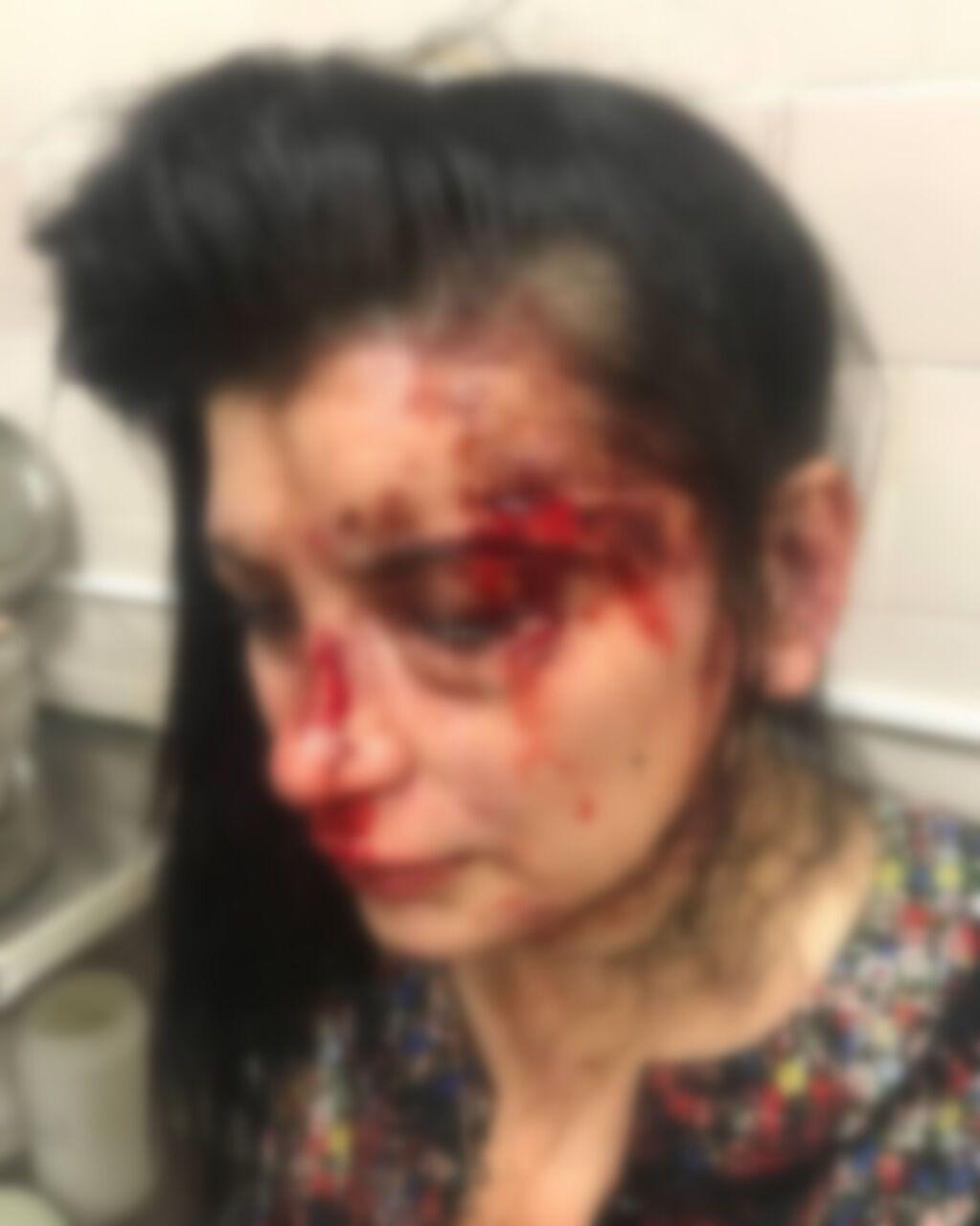 У дівчини розбите обличчя, гематоми та струс мозку