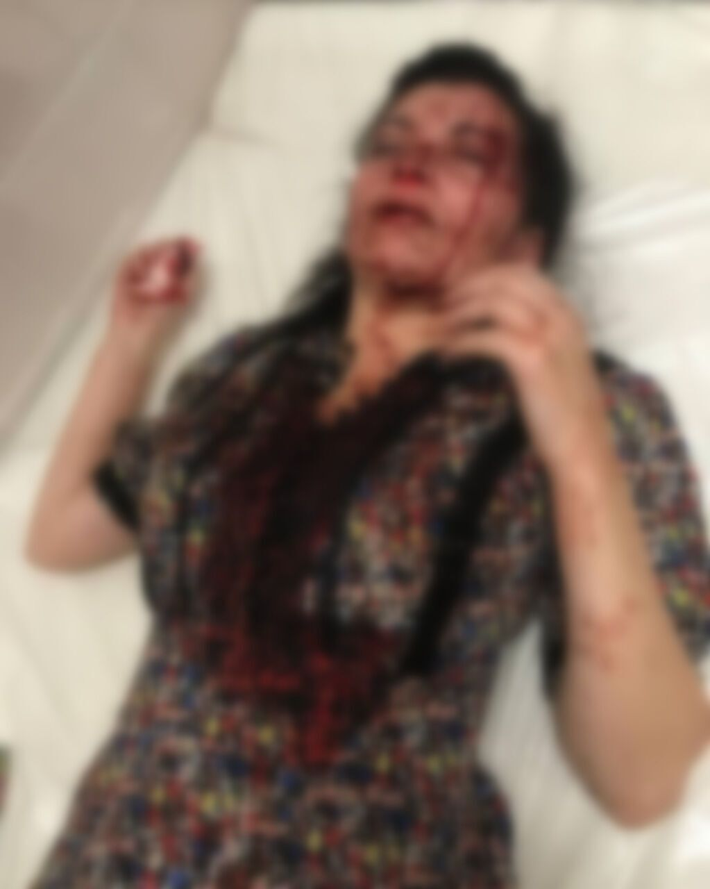 Наталія Ешонкулова на обстеженні в лікарні