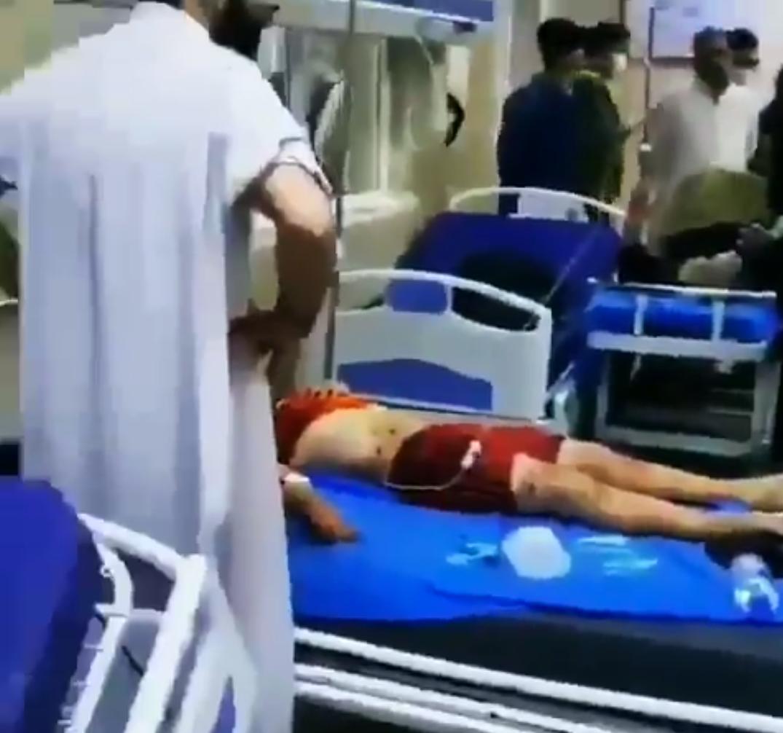 При взрыве ранения получили 47 человек.