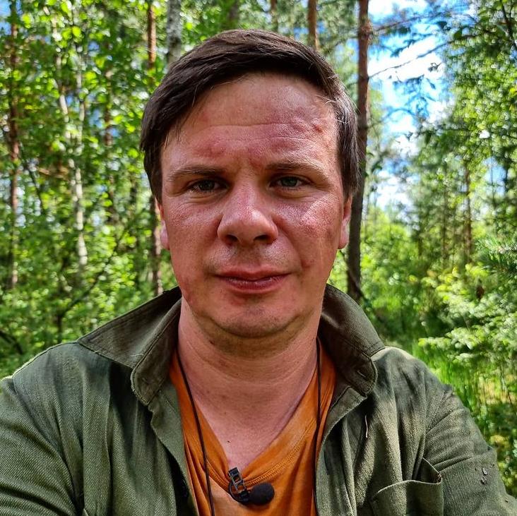 Дмитрий Комаров показал свое искусанное комарами лицо.
