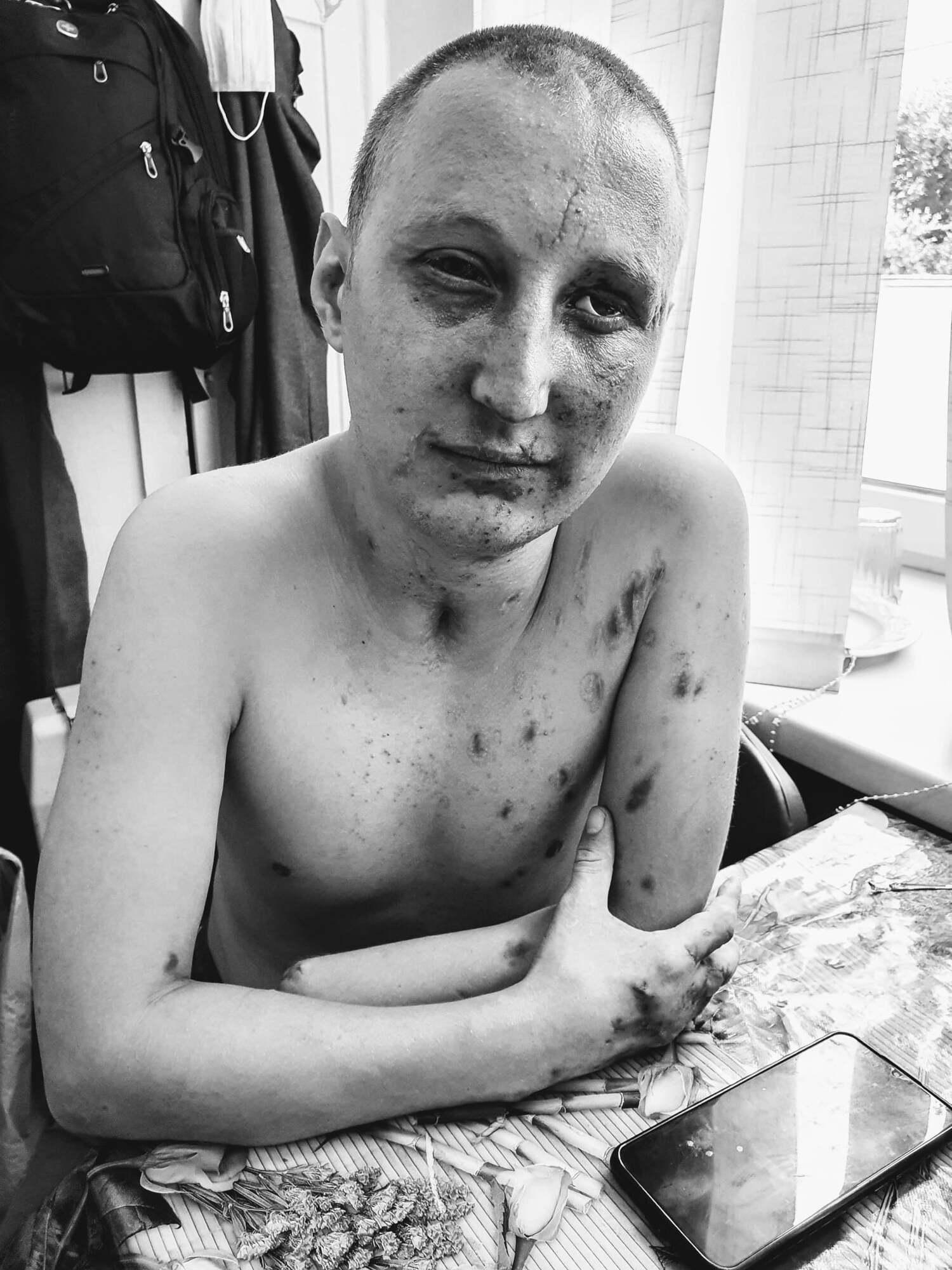Лечение Виталия после ранения продолжается уже 5 месяц. За это время он ни разу не был дома