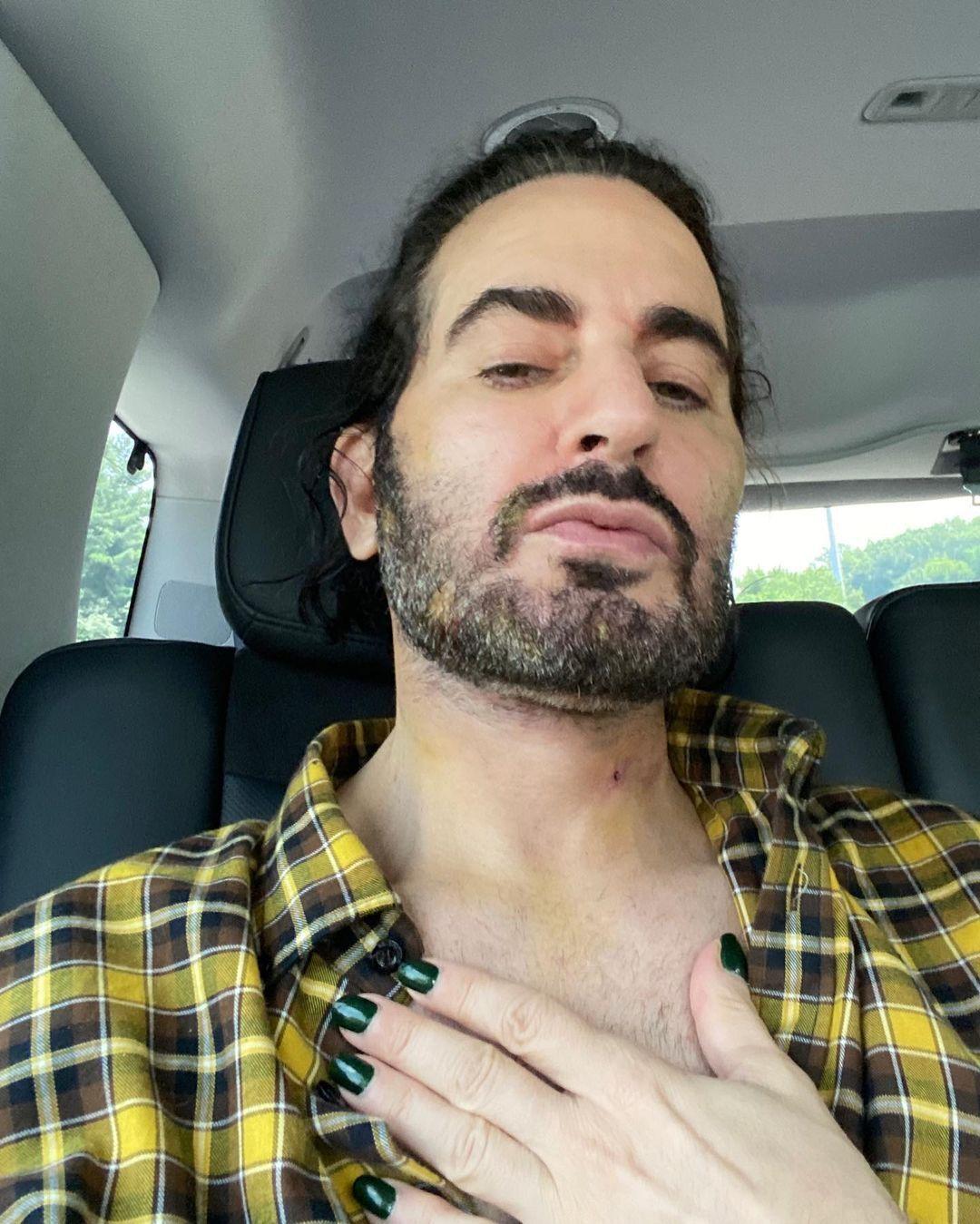 Марк на 6 день после операции.