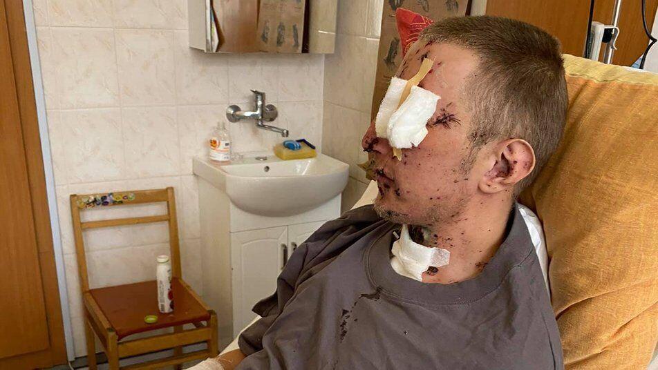 В результате взрыва парень потерял левый глаз и кисть руки. За правую руку и возможность видеть уцелевшим глазом врачам пришлось бороться