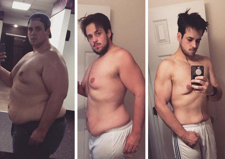 Чоловік мав понад 50 кілограмів зайвої ваги