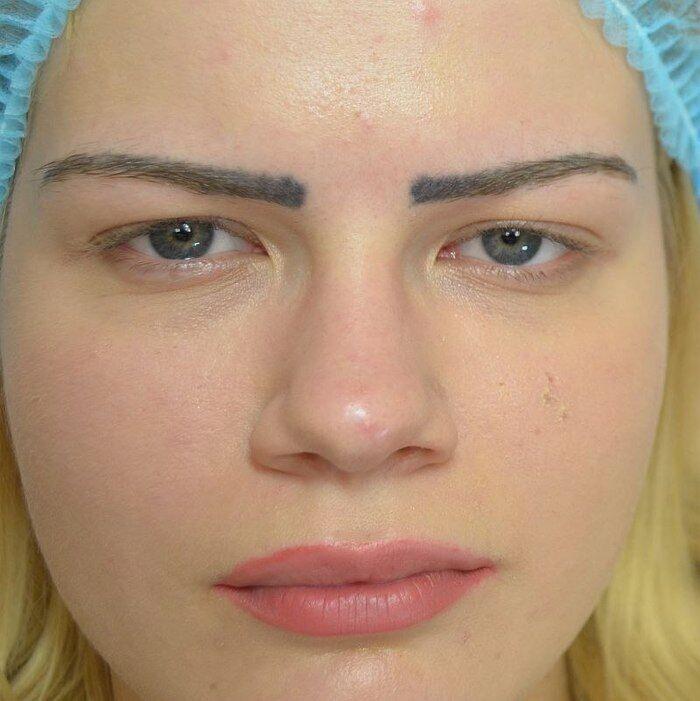 Мастер татуажа набила ужасные брови для клиентки.