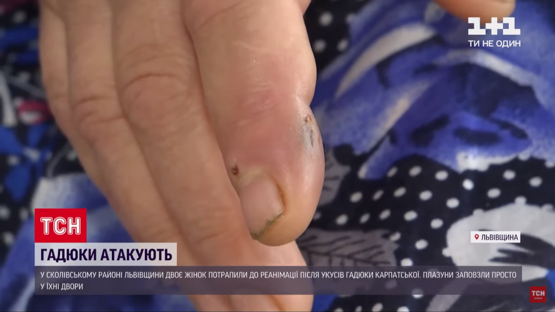 Гадюка вкусила жінку за палець