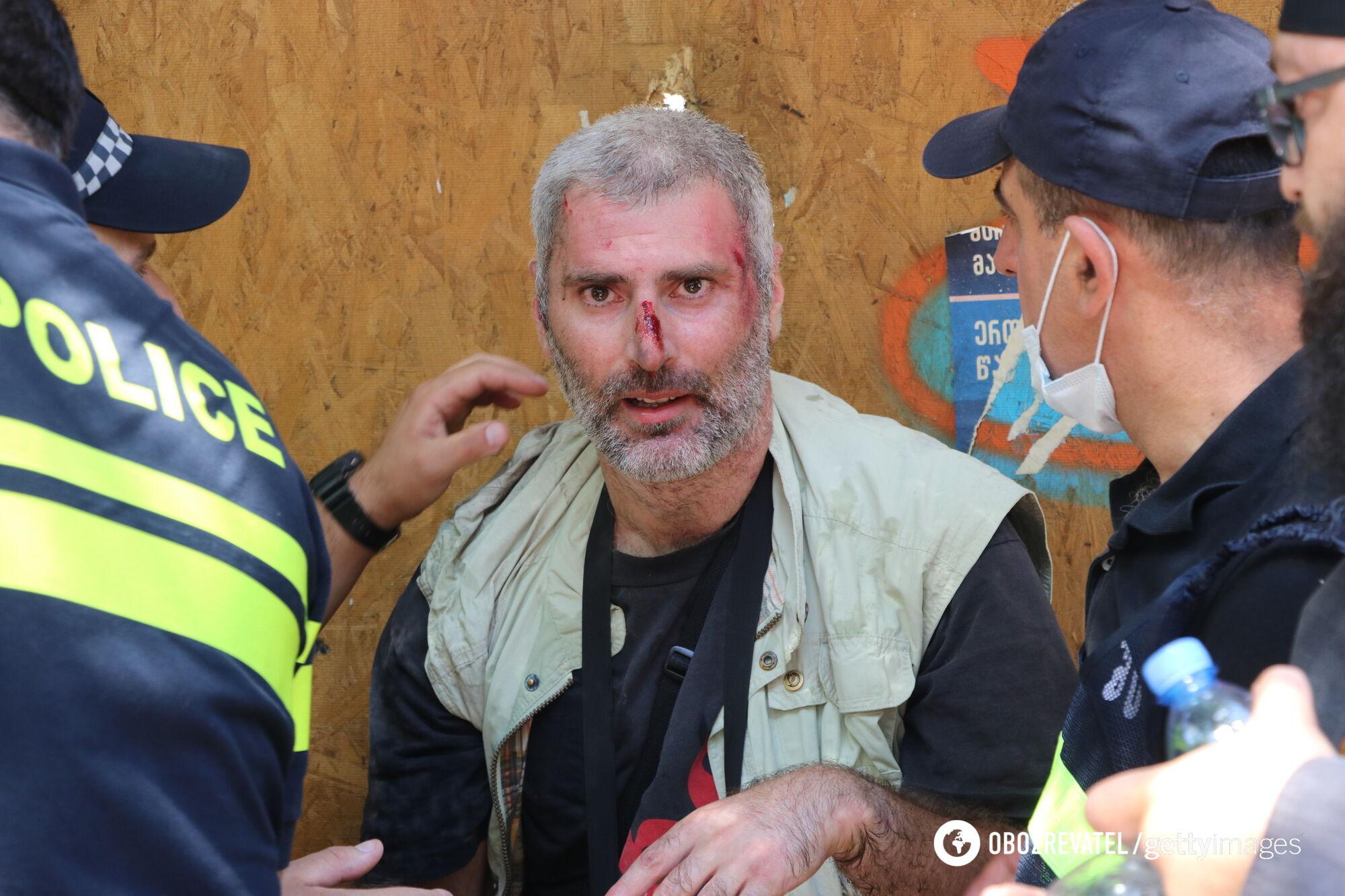 В Тбилиси пострадали журналисты.
