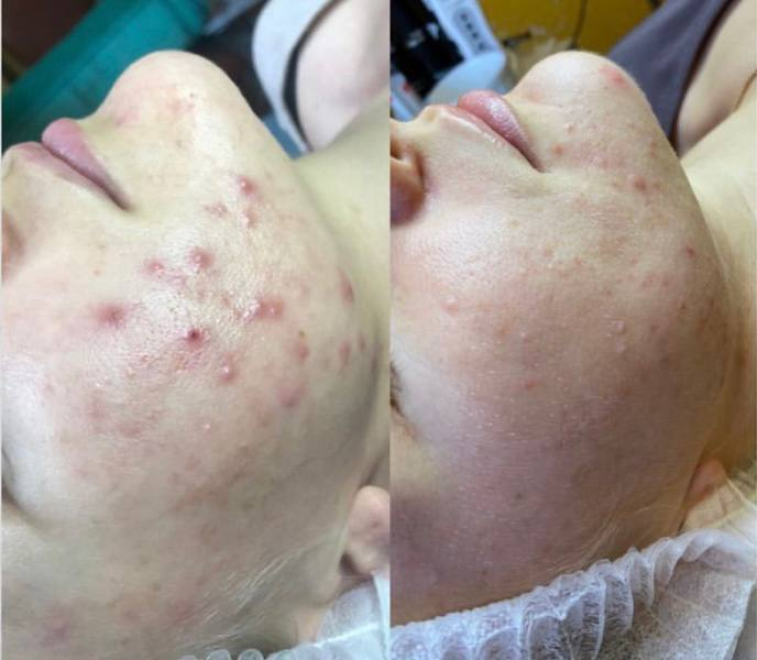 У многих тысяч людей есть проблемы с высыпаниями на лице