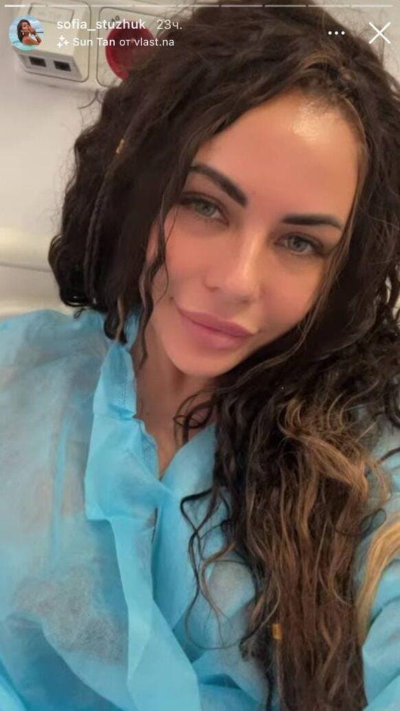 Софія Стужук зробила операцію на обличчі.