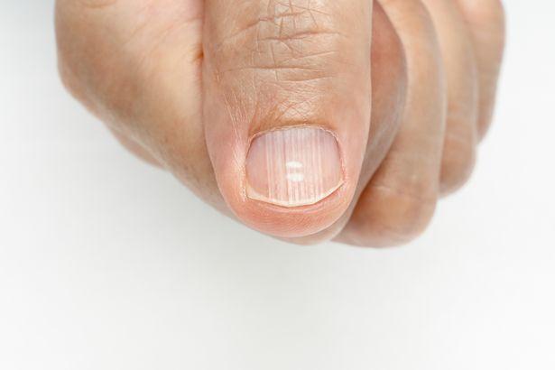 Ногти отрастают за несколько месяцев.
