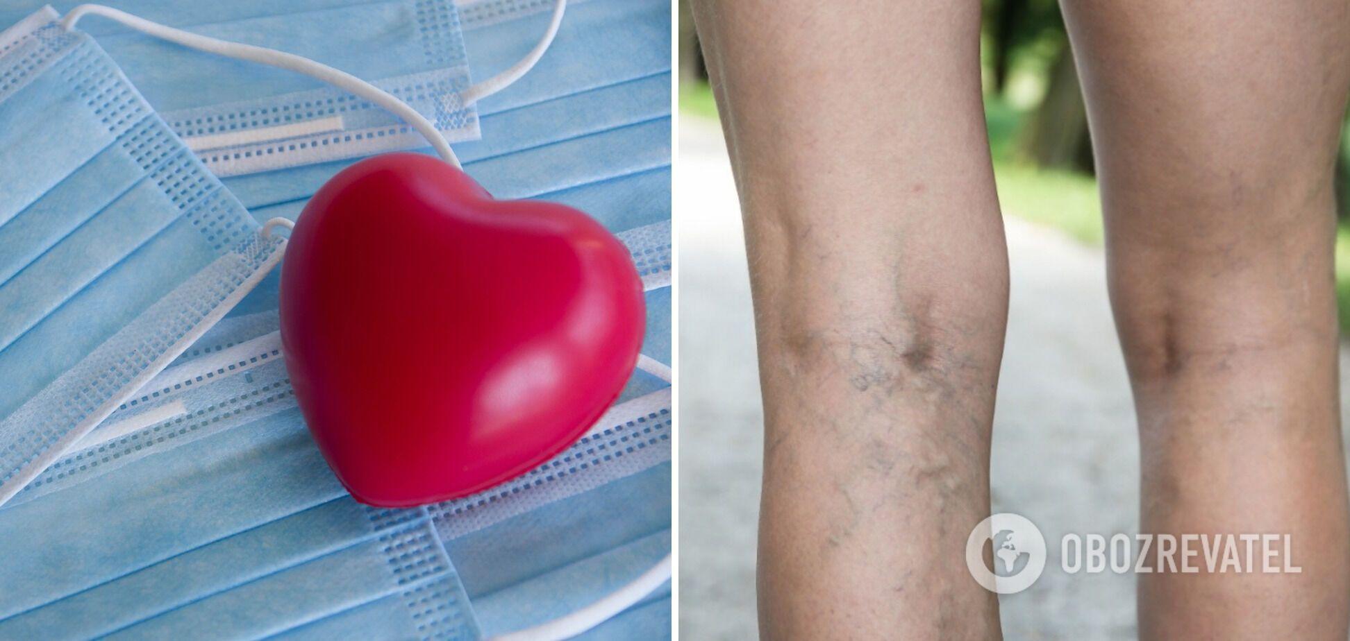 Риск образования тромбов и заболеваний сердца после COVID-19 выше, чем после вакцинации
