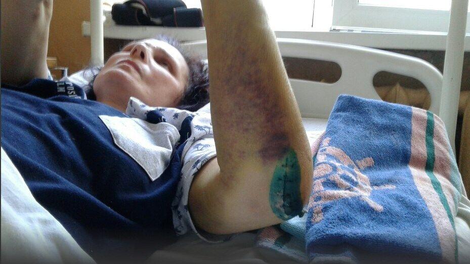 Женщина месяц провела в больнице, пока она не может ходить