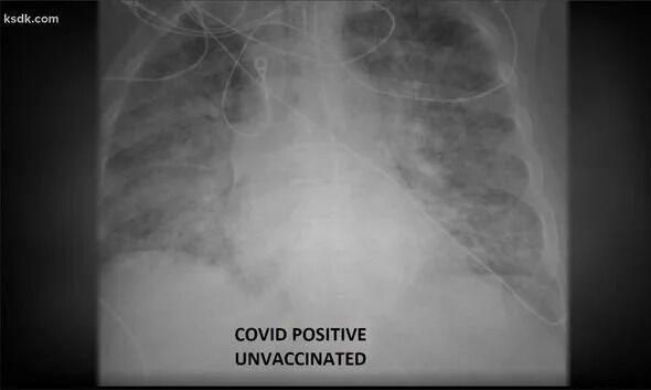 Легені невакцинованого пацієнта на рентгенівських знімках виглядали молочно-білими