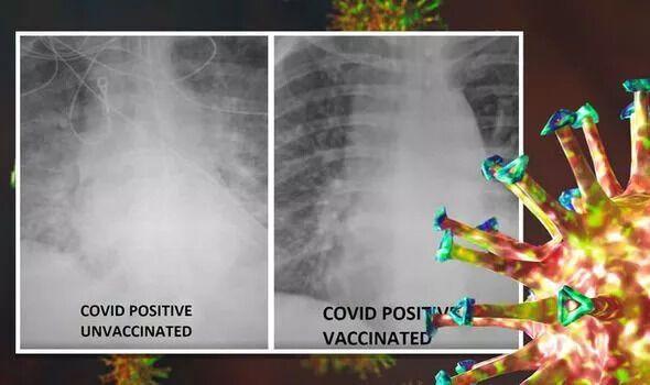 Різниця рентген-знімків вакцинованої і невакцинованої людей, інфікованих коронавірусом