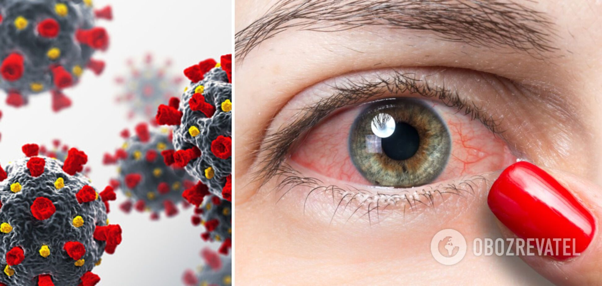 COVID-19 может привести к кровоизлиянию в глаз, – врач