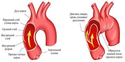 Розшаровувальна аневризма аорти