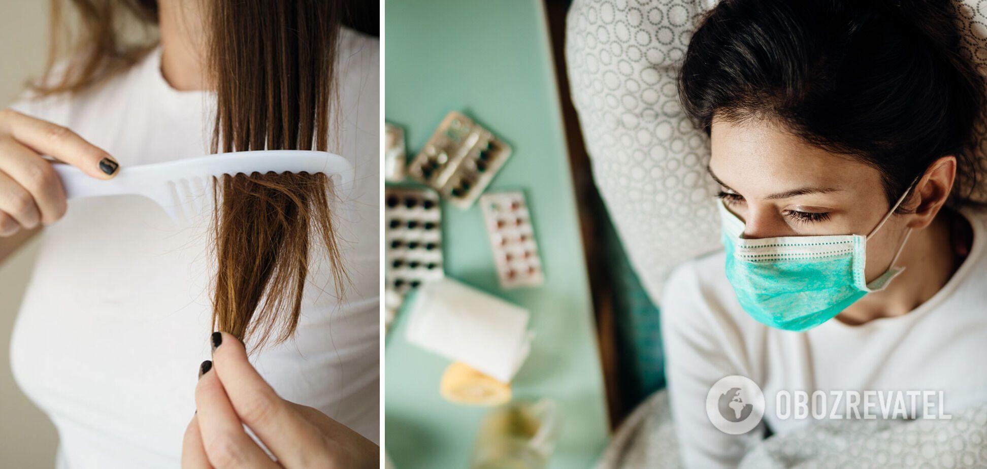 Многие люди заметили у себя выпадение волос после перенесенного коронавируса