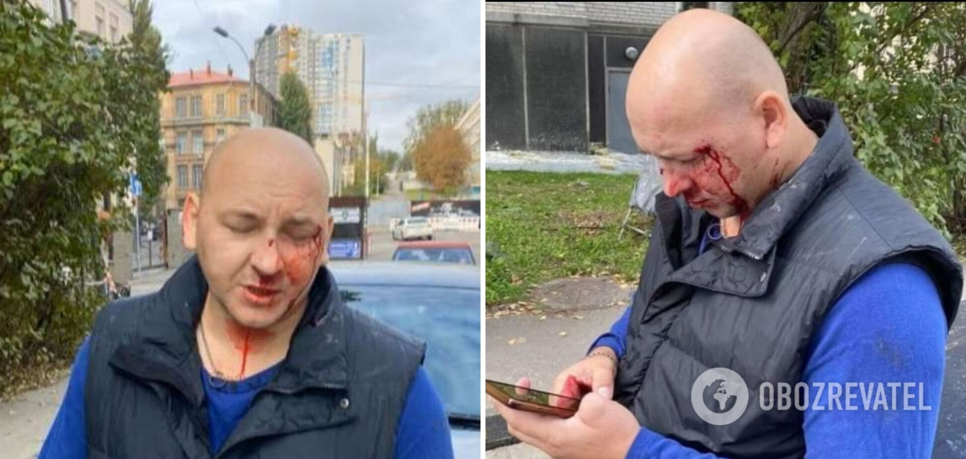 Почти год назад Иван Деев заявил о нападении на него. По его словам, виновный в этом до сих пор наказания не понес.