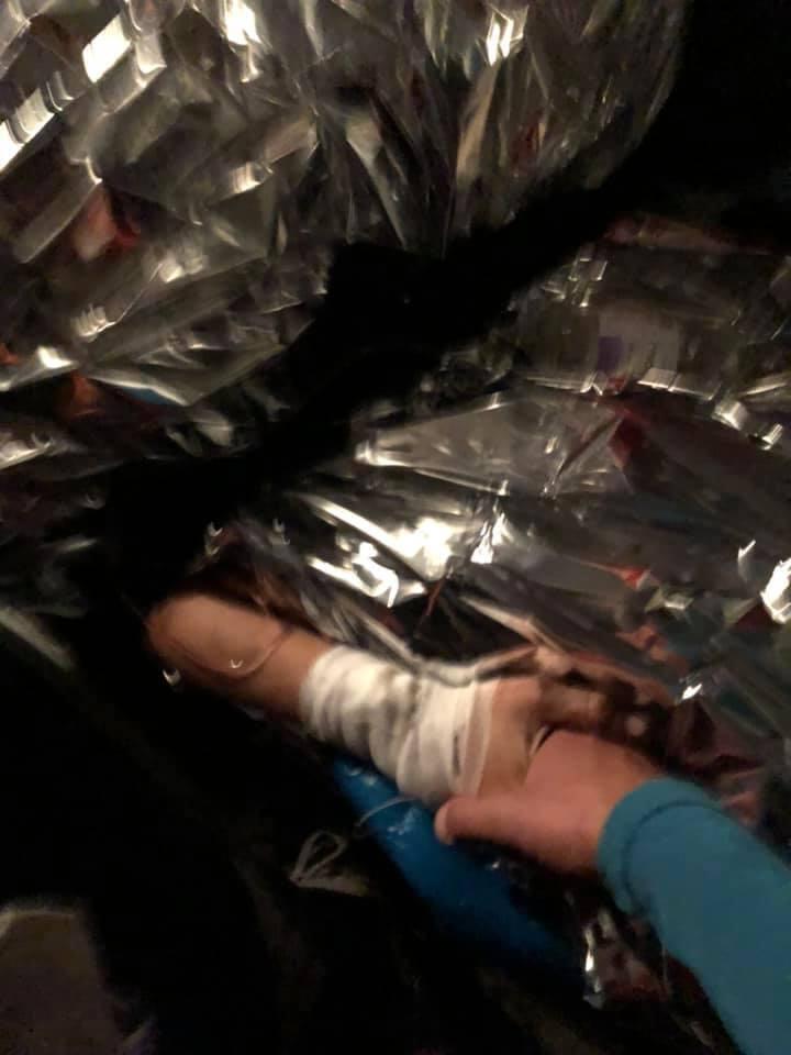 Марина постраждала найбільше, її руку лікарі збирали по шматочках