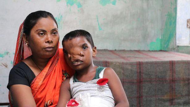 Дівчинка після операції з мамою.