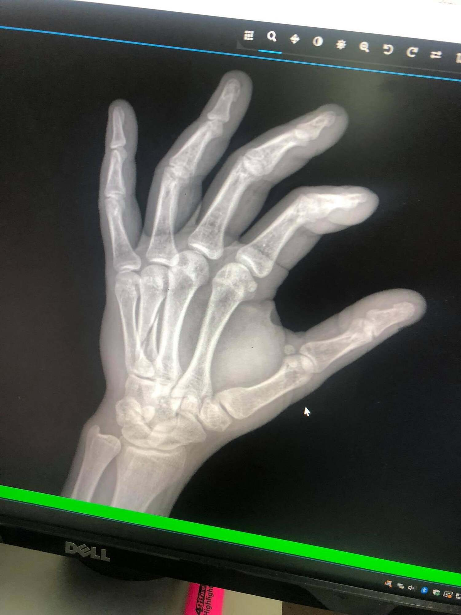 Рентгеновский снимок руки