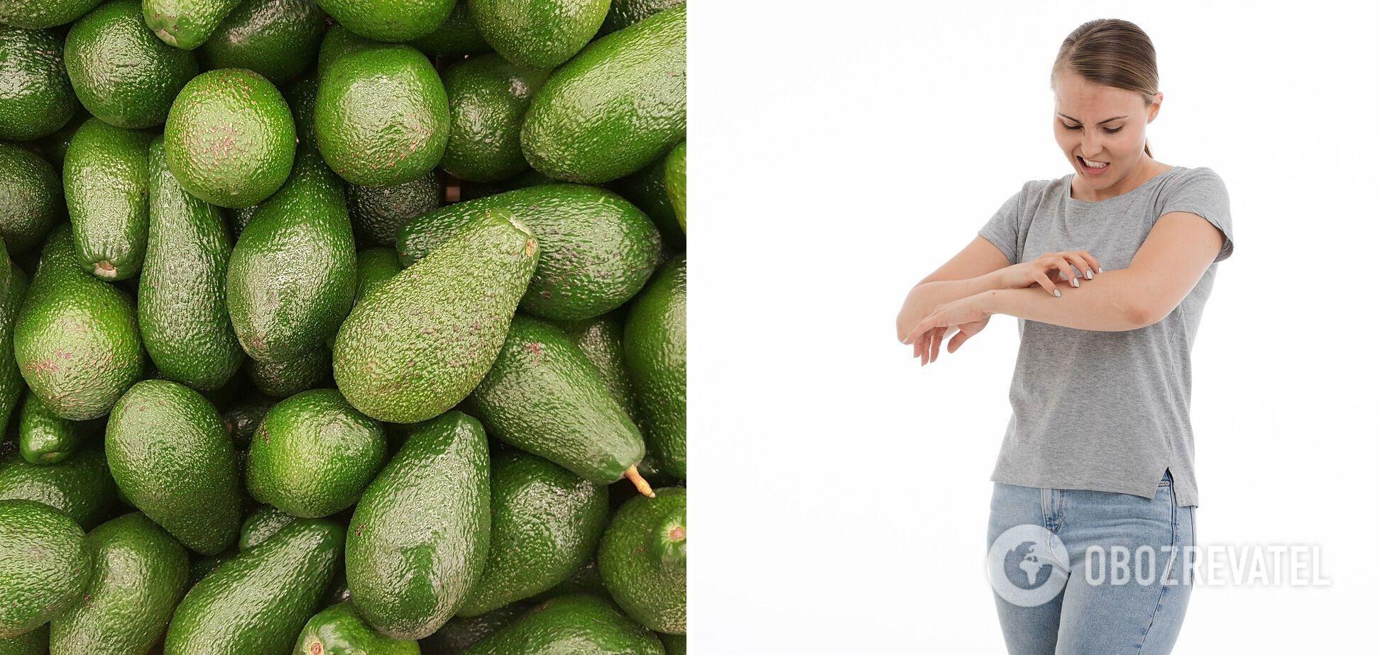 Авокадо може викликати алергію