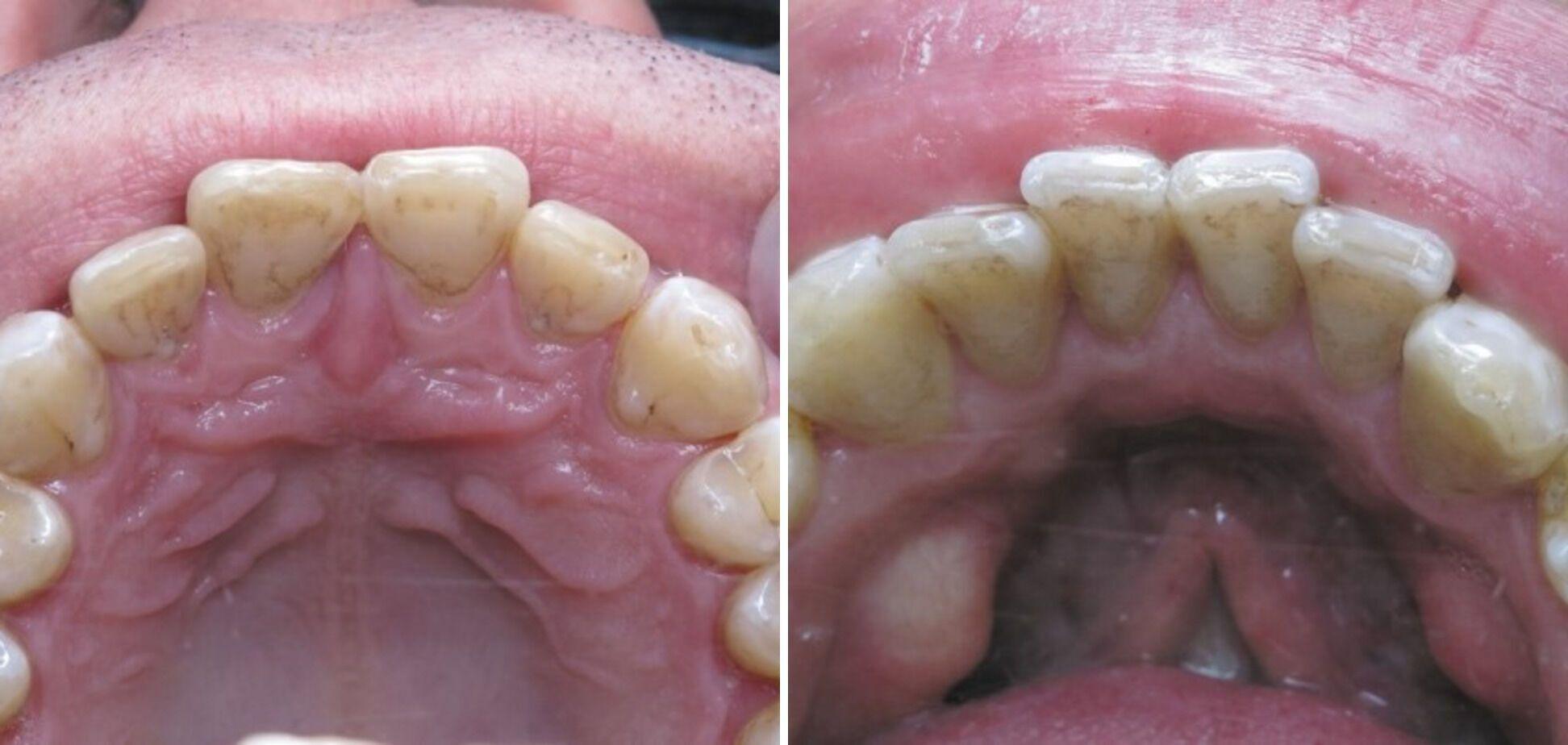 Влияние отваров ромашки и шалфея у пациентки с интактными зубами. Снятие зубных отложений около года назад.