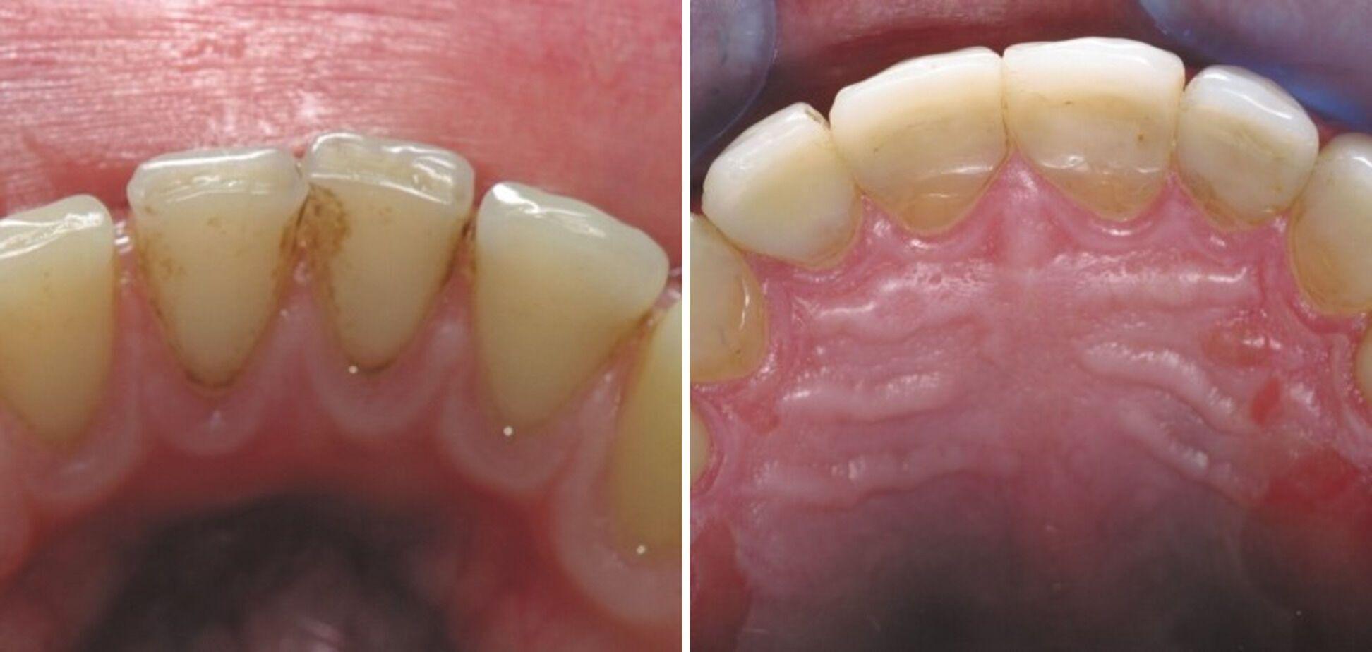 Влияние растворов хлоргексидина у пациентки с композитными реставрациями и хроническим пародонтитом. Снятие зубных отложений около полугода назад.