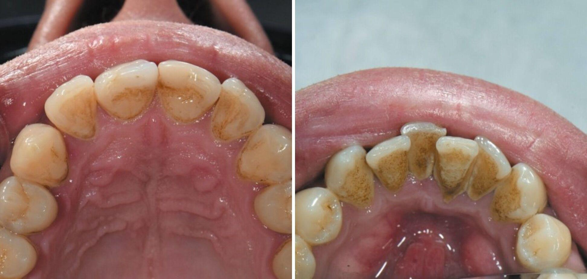 Пациент выкуривает до 20 сигарет в день. Снятие зубных отложений около года назад.