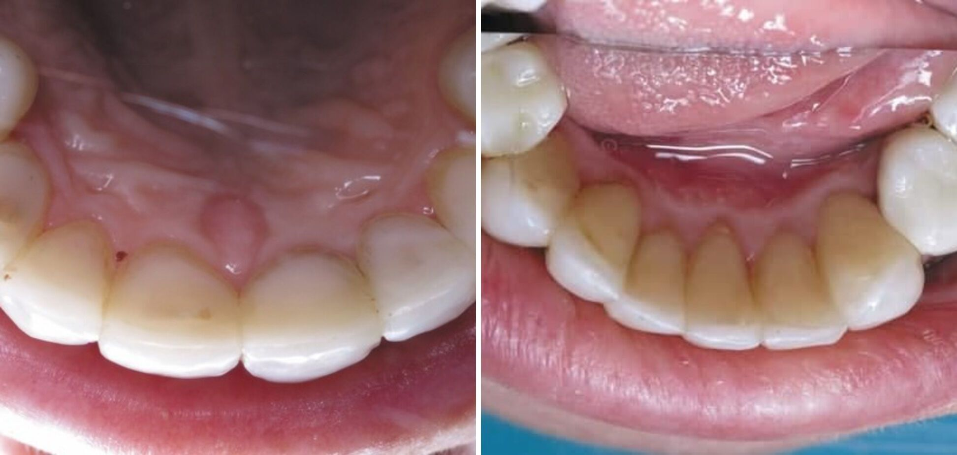 Пациентка использует систему нагревания табака. Зубы восстановлены композитными реставрациями около года назад. Снятие зубных отложений около полугода назад.