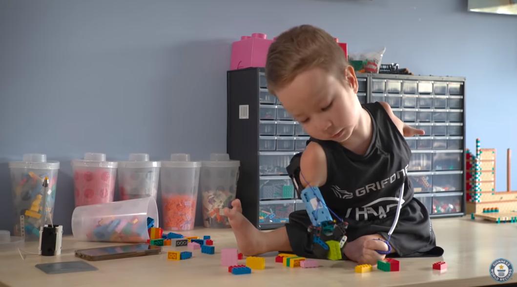 Протез для 8-річного хлопчика