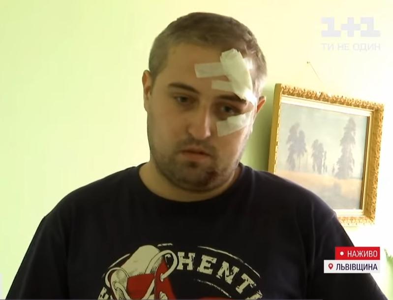 Турист з черепно-мозковою травмою