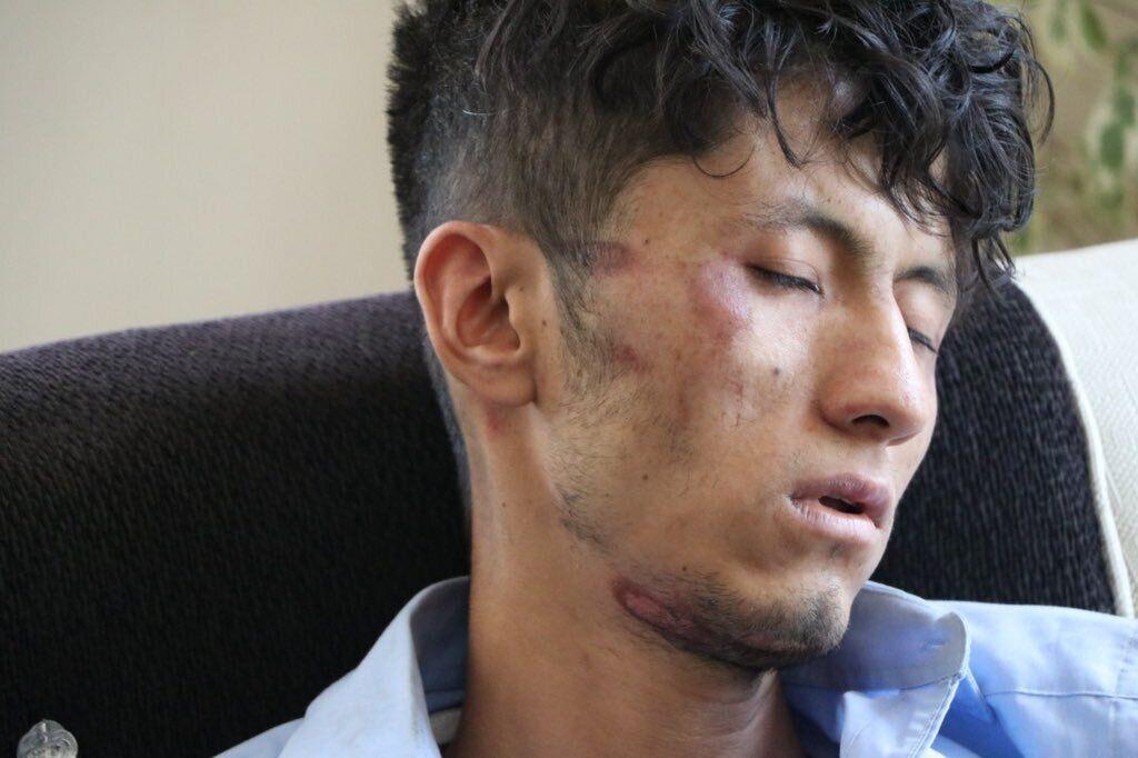 Журналистов газеты Ettelaatroz избили после задержания