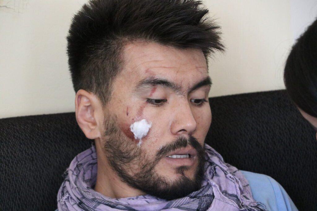 Одному из репортеров попали палкой по лицу