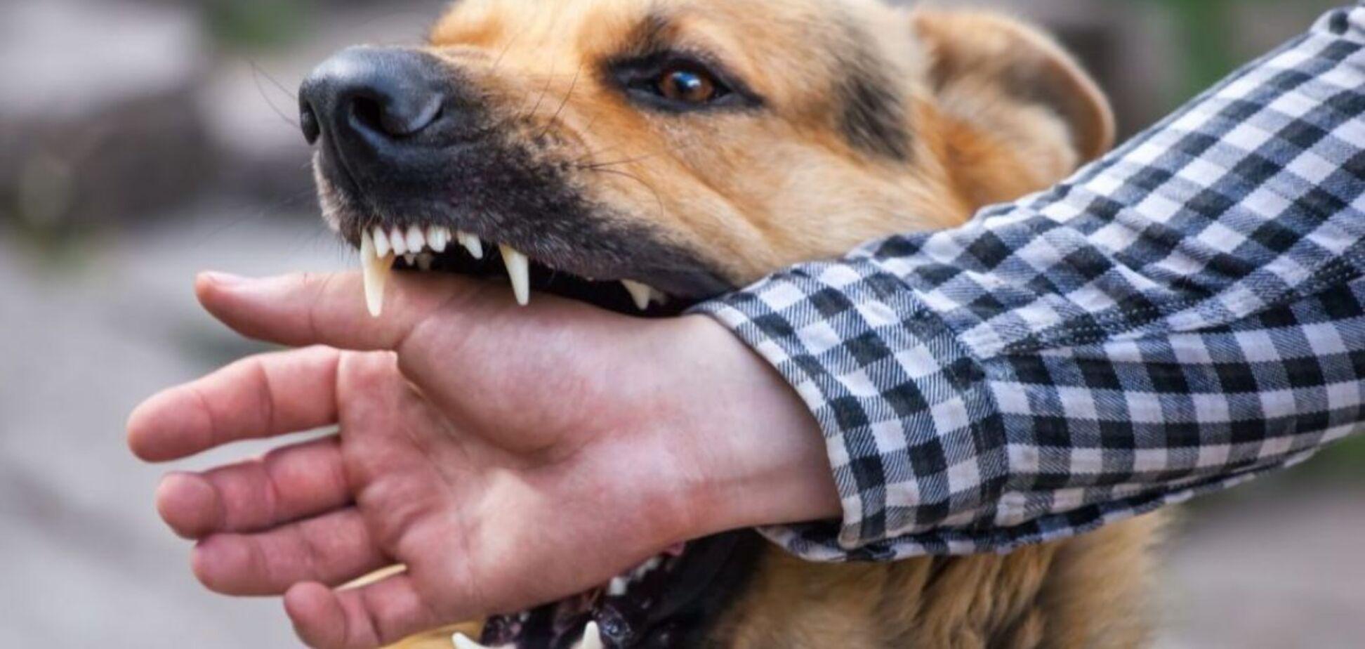В Днепре собака посреди улицы разорвала руку ребенку