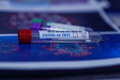 Ученые призвали всех, кто не чувствует запахов, таких как чеснока, лука, кофе или духов, самоизолироваться и пройти тест на коронавирус